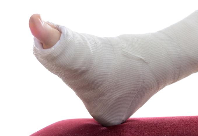 Broken-Ankle-avy-amin'ny fitsangatsanganana an-tsambo