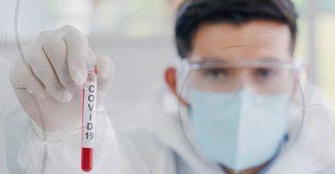 Dominika hlásí nový případ koronaviru