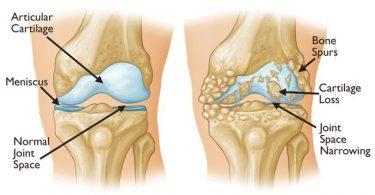 Kronične bolesti kostiju i zglobova: Znanstvenici objašnjavaju