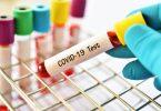 A Grecia richiede u test COVID-19 per l'entrata da Svezia, Belgio, Spagna, Paesi Bassi è Repubblica Ceca