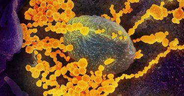 Americká studie imunity COVID-19 je měničem her a pochází z HHMI ve Virginii