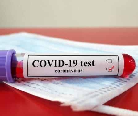 Jamaica increases COVID-19 testing capacity